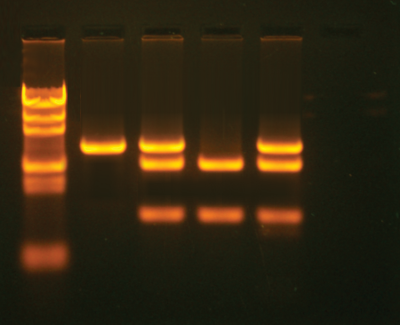 cancer gene detection Genetic testing, also known as dna hereditary breast cancer along with ovarian cancer syndrome are caused by gene alterations in the genes brca1 and brca2.