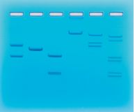 Restriction Enzyme Cleavage Patterns of DNA
