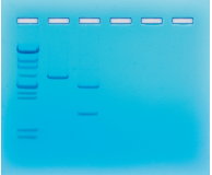 Size Determination of DNA Restriction Fragments