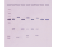 DNA Fingerprinting: Southern Blot Analysis (Non-Isotopic Detection)