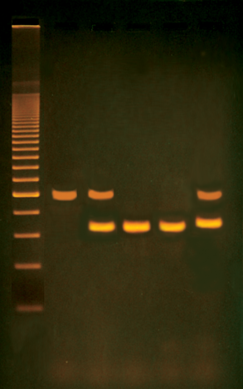 pcr based alu human dna typing Dna extraction and quantification more on pcr  determine the quantity of the dna • dna typing methods rflp and pcr  of degraded vs intact human dna and pcr.