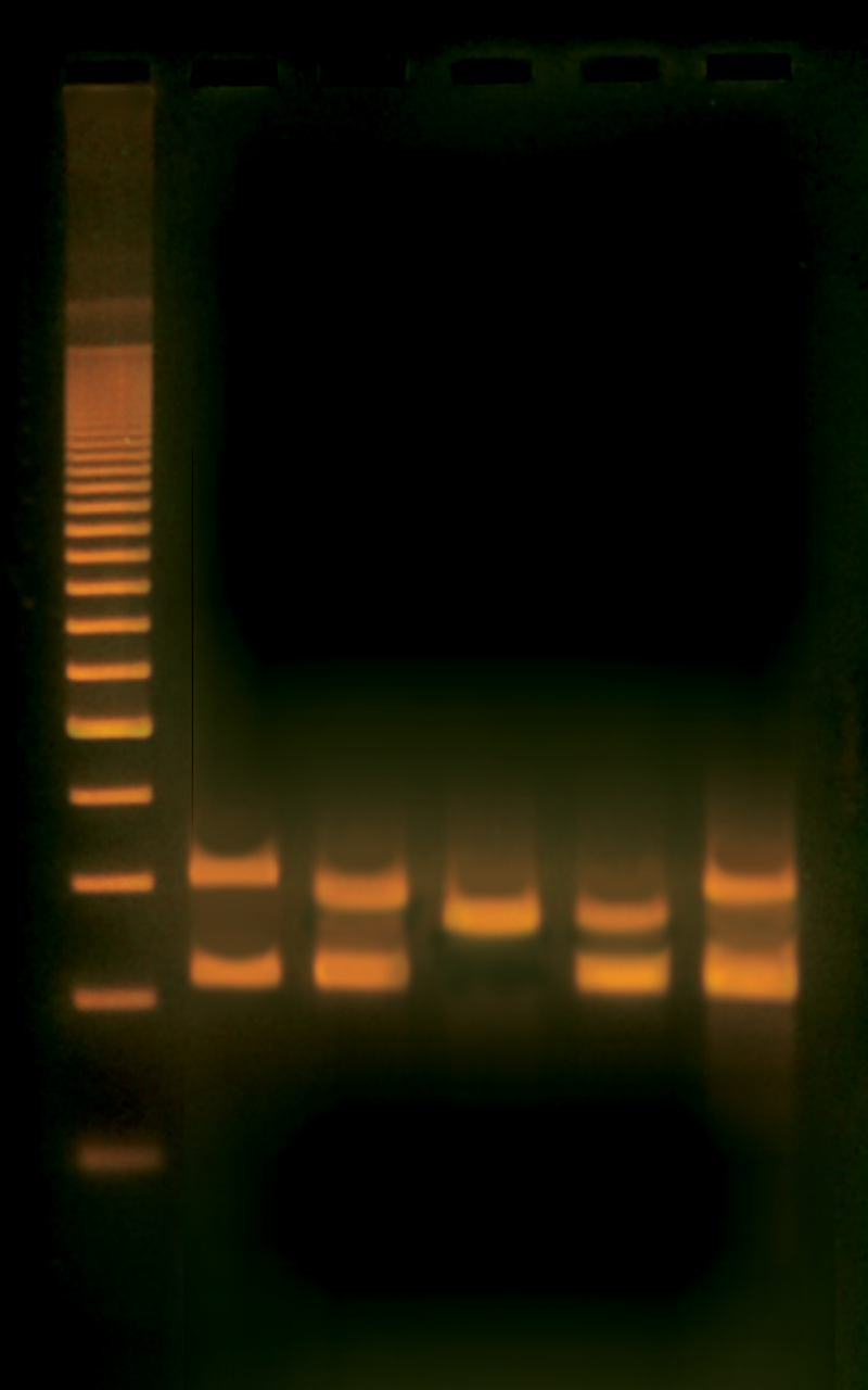 PCR Based VNTR Human DNA Typing Adapted From FBI