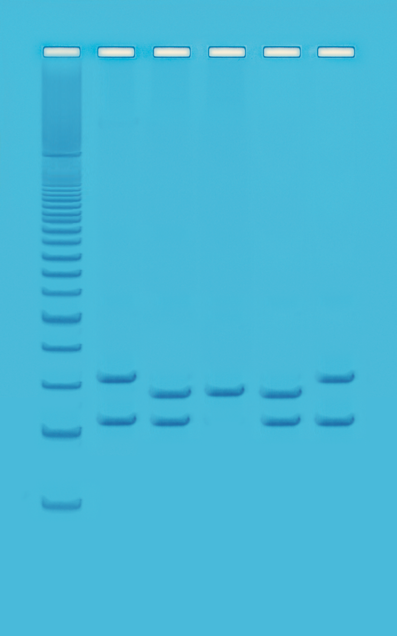 PCR-based VNTR Human DNA Typing (Adapted from FBI Technology) » BioTek