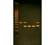 PCR-based Alu-Human DNA Typing (Adapted from FBI Technology)
