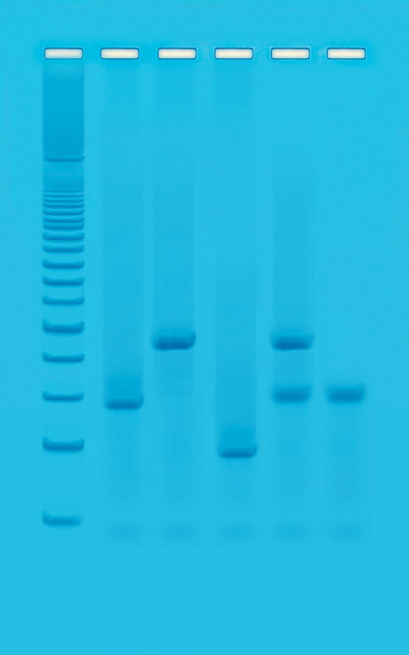 dna fingerprinting Dna fingerprinting is used by scientists to distinguish between individuals of (pcr) using short tandem repeats (strs) dna extraction and purification is the.