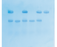 In Search of the Sickle Cell Gene by Southern Blot